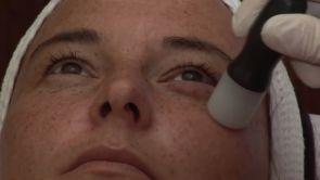 Revitalizace obličeje 2. část - Mezoterapie