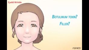 AGNES - Periorbital Wrinkle Treatment Animation