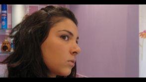 Kathryn Mashhadi (23), Feldbridge West Sussex, UK – Rhinoplasty (Nose job)