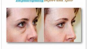 What is Eyelid Surgery Blepharoplasty