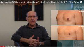 Gynäkomastie OP (Männerbrust) | Schönheitschirurg Univ.-Prof. Dr. Edvin Turkof