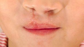 Opération de la fente labio-palatine