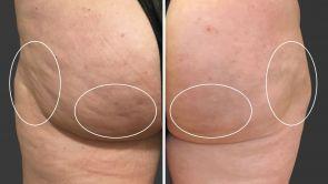 Cellfina - Behandlung der Cellulite