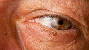 Odstranění xantelazmat (tukových usazenin v okolí očí)