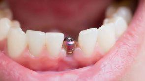 Zubné miniimplantáty