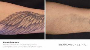 Usuwanie tatuażu laserem pikosekundowym