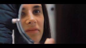 Cosa dicono i miei pazienti: Rinoplastica di Antonella