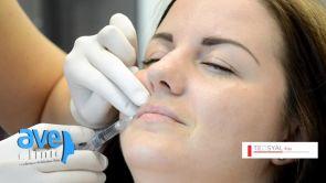Zväčšenie pier (augmentácia pier) lip Filler Teosyal® Kiss