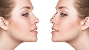 Efekty korekcji nosa - nos idealny
