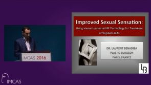 Vaginal laxity treatment by radio-frequency