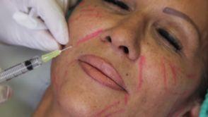 Resculpter son visage sans chirurgie
