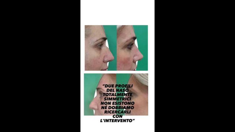 I principali motivi per la Rinoplastica - Dott. Francesco Lino