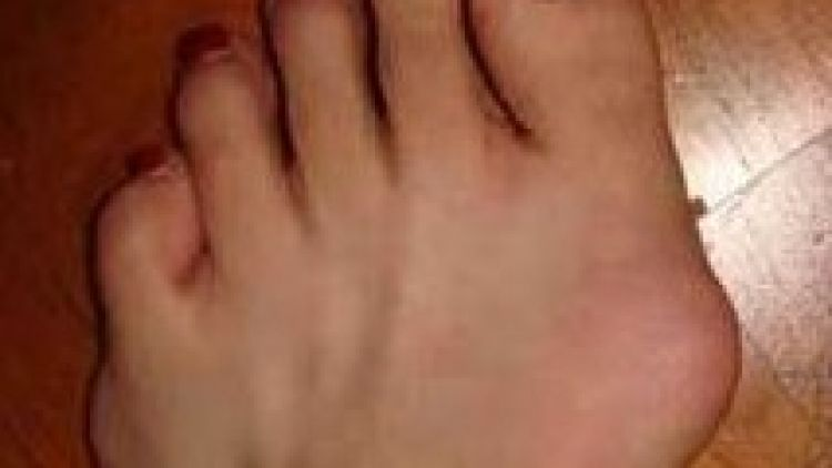 Why wait to treat bunions?