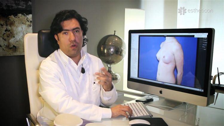 Pouvez-vous m'informer sur l'augmentation mammaire faite par prothèse?