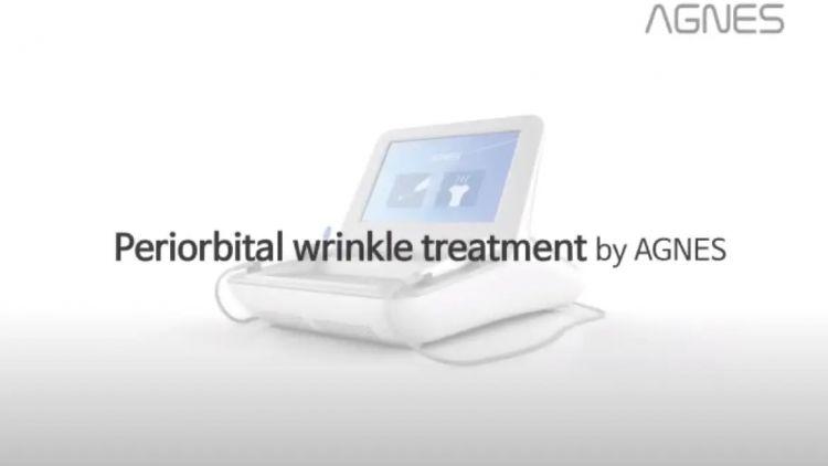 AGNES - Periorbital Wrinkle Treatment Animation