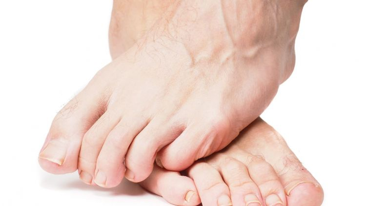 Möglichkeit der Fußverkleinerung bei den Transsexuellen
