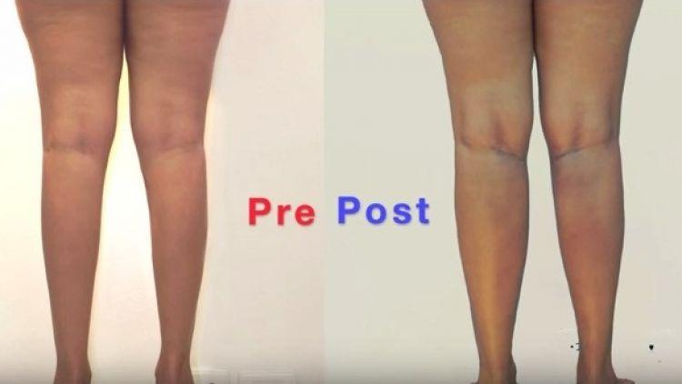 Aumento de Pantorrillas Implantes