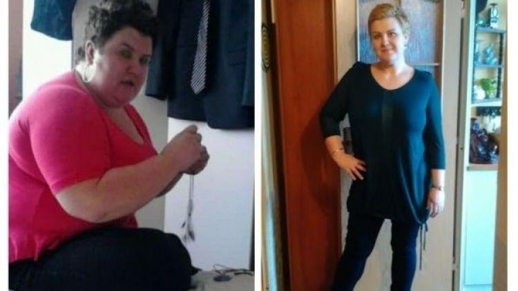 """""""Podstoupila jsem tubulizaci žaludku: Zhubla jsem 50 kg!"""""""