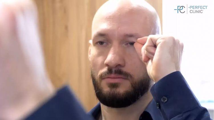 Operace očních víček u mužů