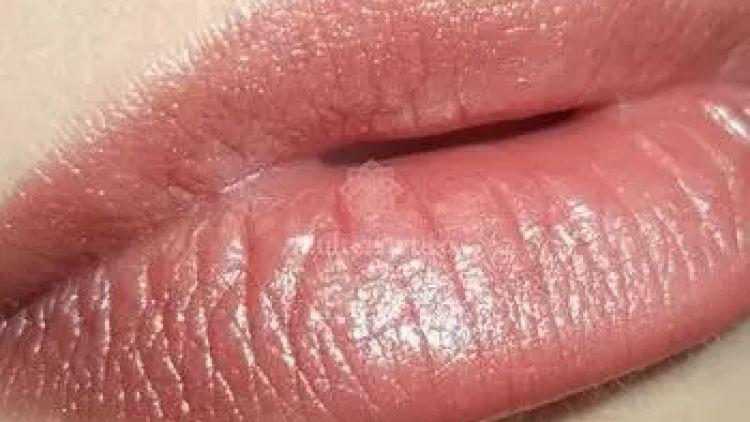 Silikon aus Lippen entfernen: Mythos oder Realität?