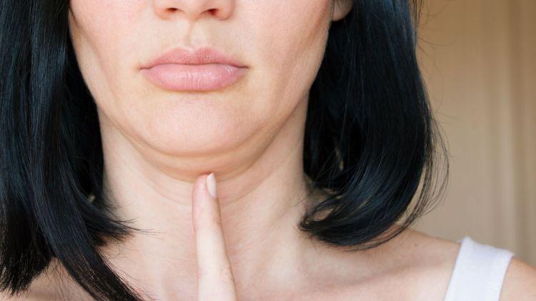 Jak odstranit dvojitou bradu? Na podbradek laserovou liposukcí
