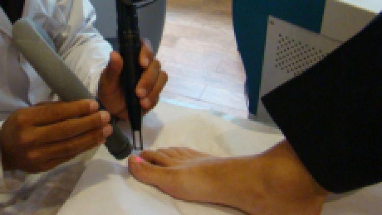 Tratamiento laser de onicomicosis