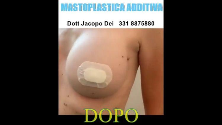 Mastoplastica additiva per Dott. Jacopo Dei