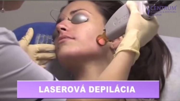 Laserova depilacia