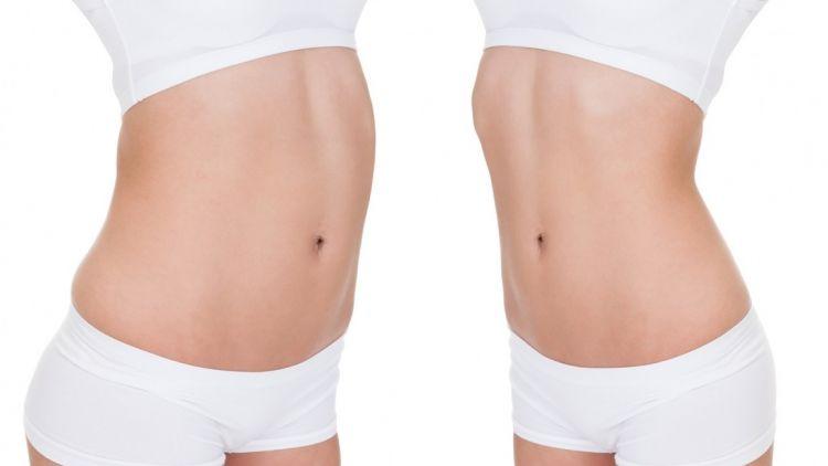 Fettabsaugung, Behandlung von Zellulitis mit des SmartLipo-Lasersystems