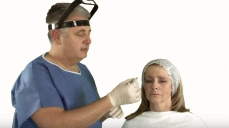 Injections of Botulinum Toxin in Glabella Area