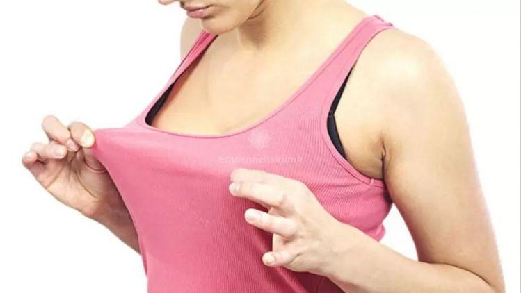 Tubuläre Brüste - Welche Ausprägungen gibt es?