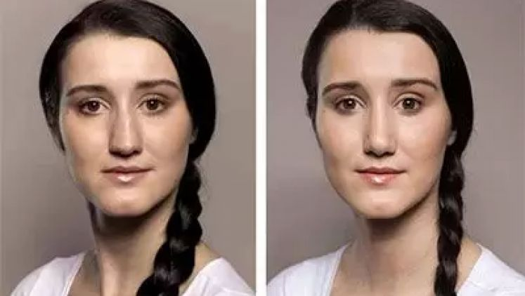 Otevřená rhinoplastika je trendem v operacích nosu