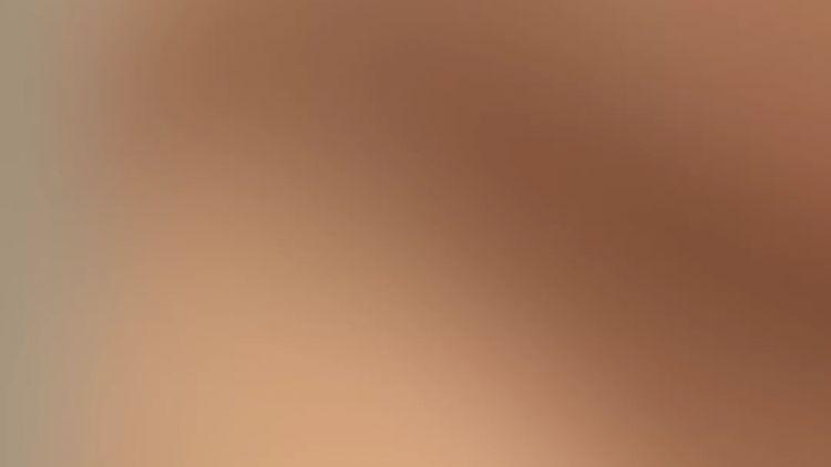 Nasenkorrektur - Nasen OP | Schönheitschirurg Univ.-Prof. Dr. Edvin Turkof