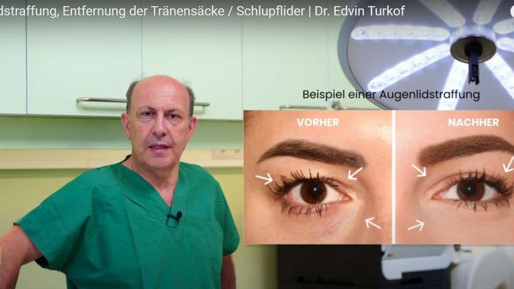 Augenlidstraffung, Entfernung der Tränensäcke / Schlupflider