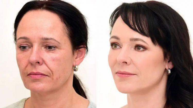 Premena pani Dagmar na Klinike YES VISAGE - operácia očných viečok a omladenie tváre