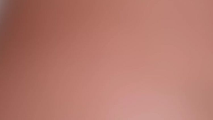 Abdominoplastias: Dermolipectomia vs. Lipoescultura