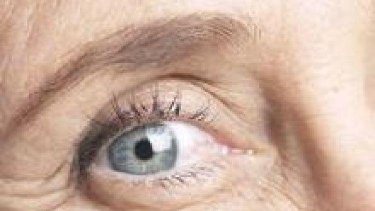 Pre koho je operácia očných viečok (blefaroplastika) vhodná?