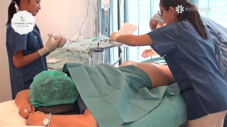 Cellfina: Behandlung der Cellulite in Lucerne Clinic