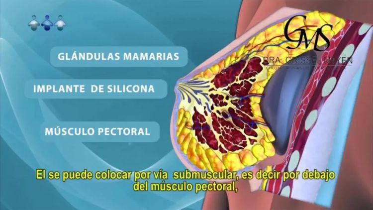 Tipos de colocación del implante mamario - Dra Grissel Mayen Silva - Cirugía Plástica Cosmédica