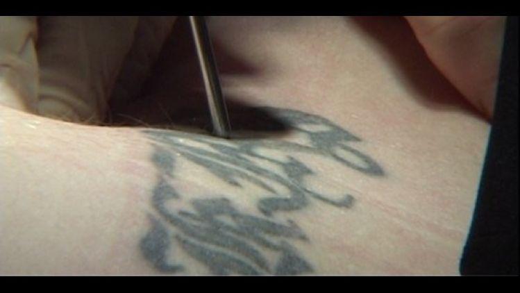 Odstraňovanie tetovania