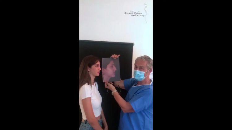 Rinoplastica - Prof. Michele Roberto