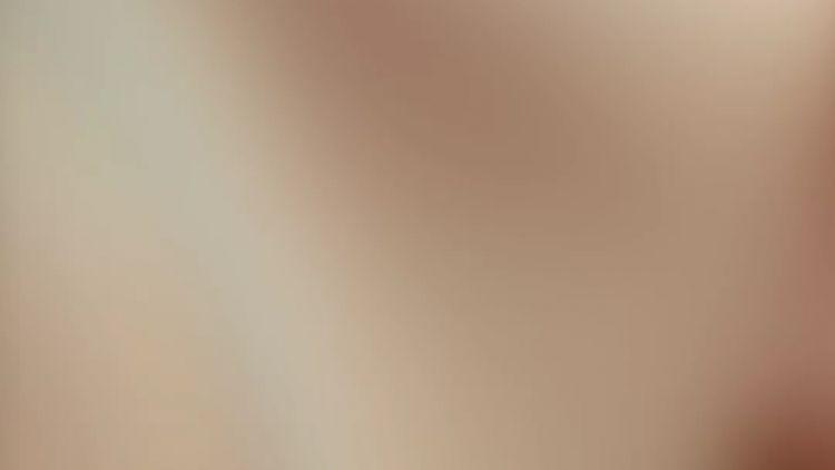 Liposucción vaser con marcación - alta definición