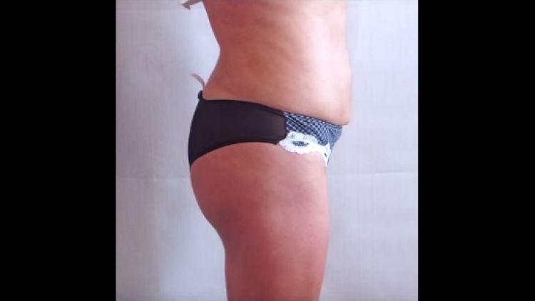 Lipofilling des fesses - déroulement de l'opération