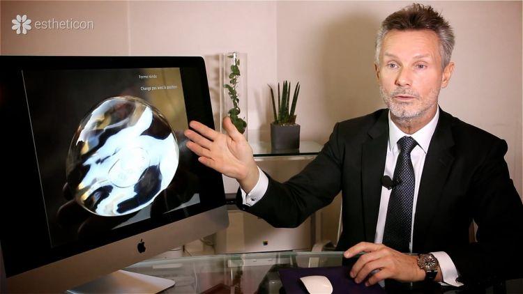 Questions avant l`augmentation mammaire