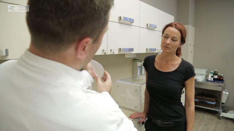 Zvětšení prsů anatomickými implantáty - Alena, 45 let