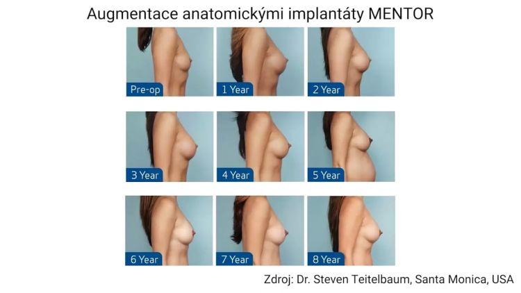 Proč je pevnější gel v anatomických implantátech žádoucí?